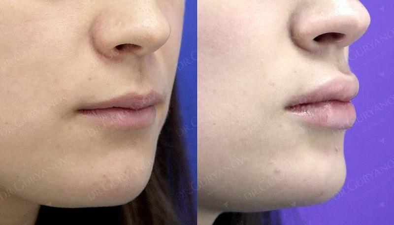 VY пластика губ у доктора Гурьянова А. С., фото до и после