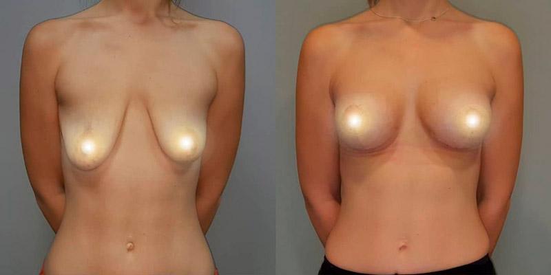 Подтяжка груди с увеличением, фото до и после
