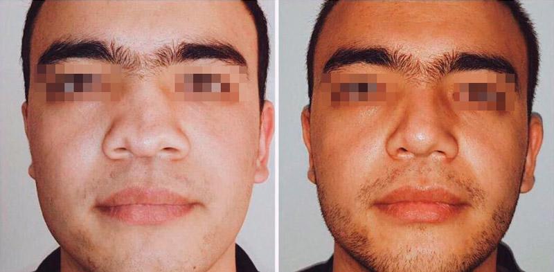 Реконструктивная ринопластика у хирурга Демченко В. А. фото до и после