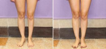 Коррекция асимметричных ног