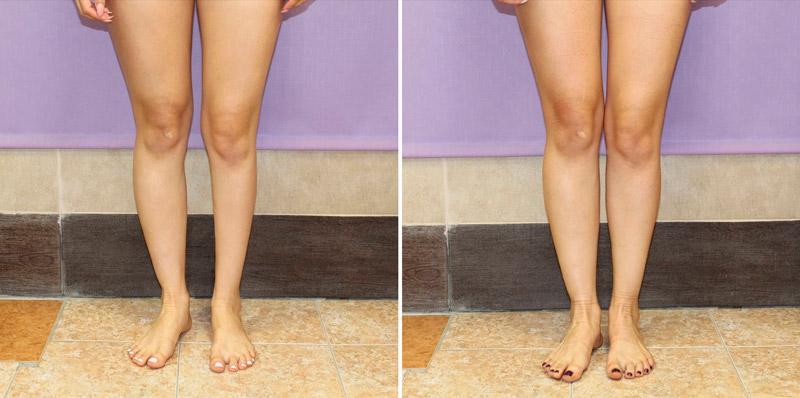 Коррекция асимметричных ног у хирурга Камалова У. Р. фото до и после