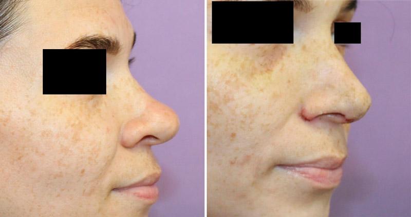 Коррекция бульбообразного кончика носа фото до и после