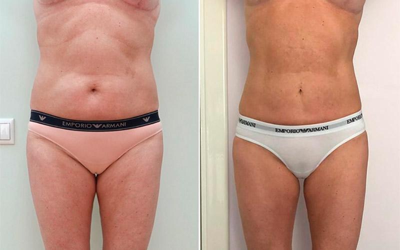 Липомоделирование фигуры и миниабдоминопластика, фото до и после