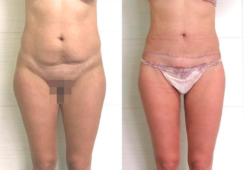 Липосакция с миниабдоминопластикой, фото до и после