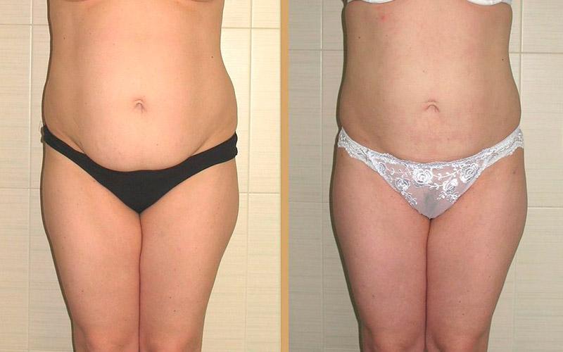 Липосакция живота аппаратом Lipomatic, фото до и после