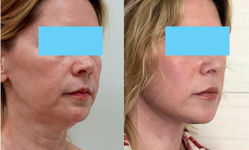 Подтяжка нижней части лица, фото до и после