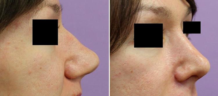 Полная ринопластика у пластического хирурга Камалова У. Р., фото до и после