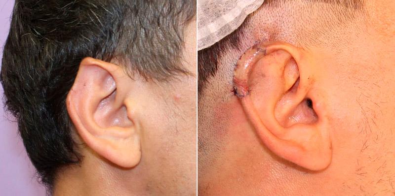 Реконструктивная отопластика у хирурга Камалова У. Р. фото до и после