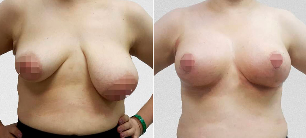 Увеличительная мастопексия с редукцией левой молочной железы, фото до и после