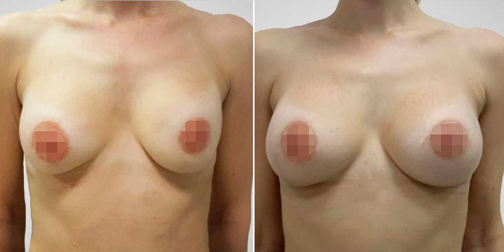 Замена имплантов с 250 мл на 350 мл у хирурга Кравченко В. И., фото до и после